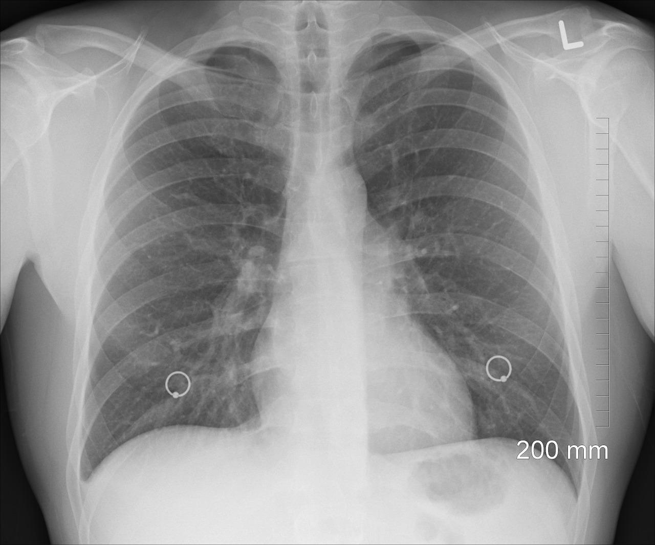 Jak chronić drogi oddechowe podczas pracy?